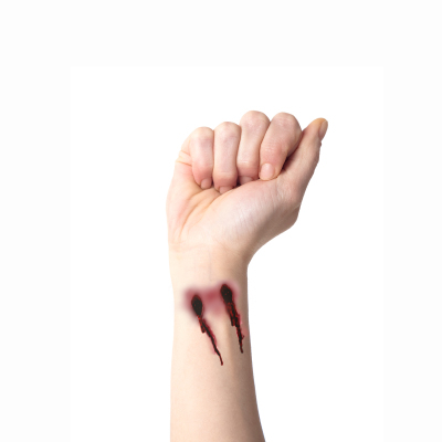 Vampire bite on wrist